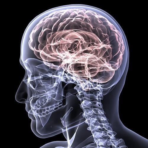 neirostimulator